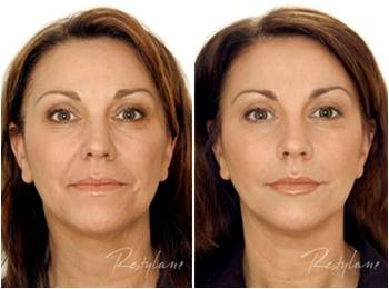Restylane face